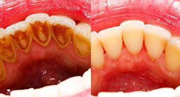 جرم گیری دندان موجب کاهش خطر حمله قلبی و سکته مغزی در افراد مسن می شود