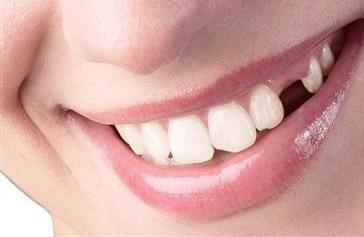 آنچه از جایگزینی دندان باید بدانیم