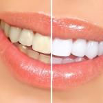سفید شدن دندادن ها