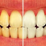 چه چیزی دندان های مان را زرد میکند؟
