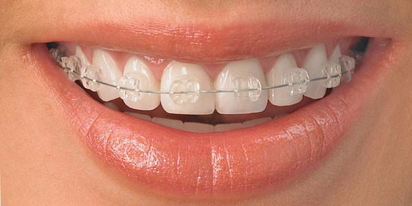 ارتودنسی سریع، میان بری برای ردیف شدن دندان ها